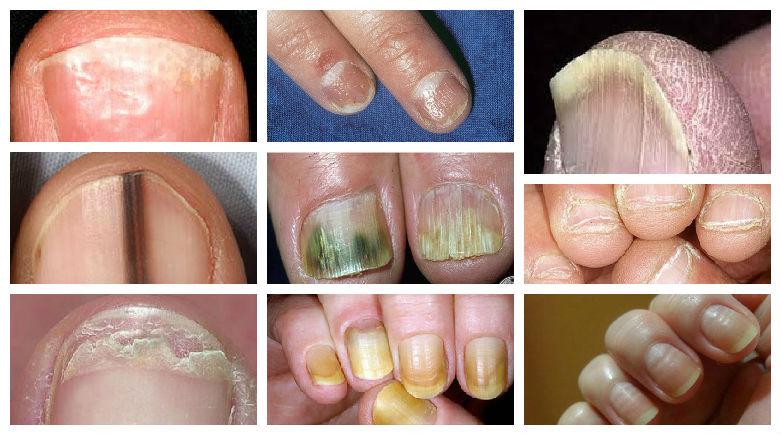 El magullado del dedo en la mano la uña el tratamiento
