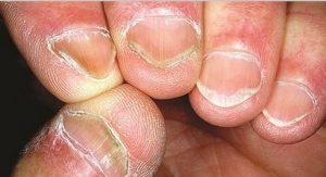 Prevención Y Tratamiento De Las Uñas Onduladas Mis Uñas